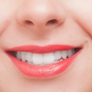 1日だけでも! 即効で歯を白くキレイに見せる方法ってあるの?