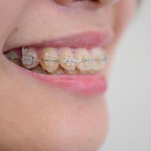 歯並びを治せば小顔になれるって本当? 歯列矯正と小顔の関係とは