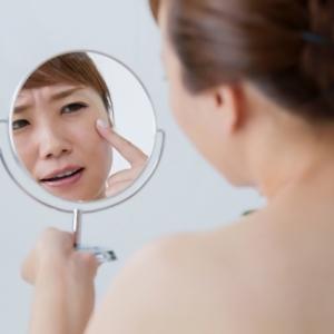 繰り返す頬のニキビが出来る原因と、解消のために気を付けるべき事