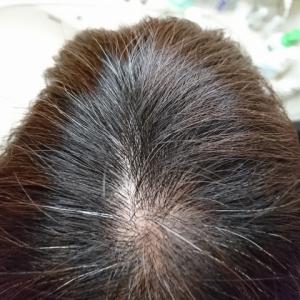 頭皮の乾燥を防ぐシャンプーの選び方は、これだけ覚えておけばOK