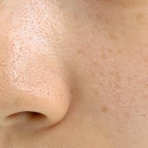 千葉の格安でシミ取りが出来るおすすめ美容外科6選