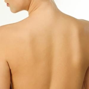気づきにくい背中のニキビ 跡が残らないキレイなケア方法とは
