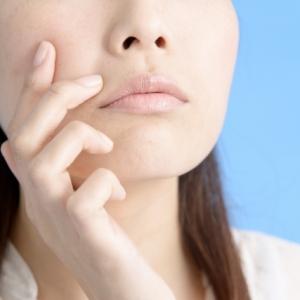 にきびに日焼け止めは塗って良い? ニキビ予防には紫外線ケアも大切