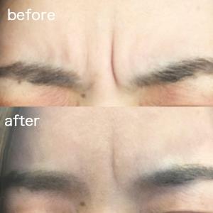 【ガチ体験】韓国製ボトックスは効かない!?眉間のシワ治療の効果と失敗しない選び方