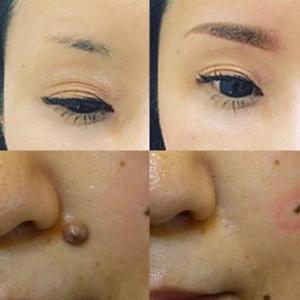 連休を利用してシミ・ホクロ除去!ダウンタイムが必要な美容皮膚科治療をしてしまおう